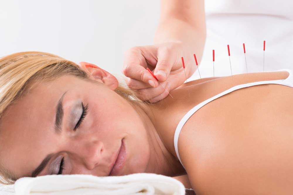 Acupuncture For Back Pain - Ascent Health Center