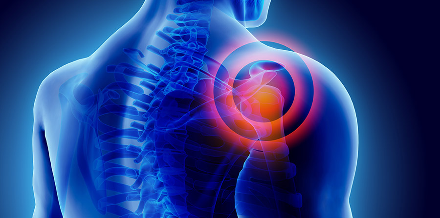 Chiropractic Treatment for Shoulder Pain