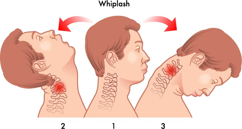Whiplash Causes and Treatment
