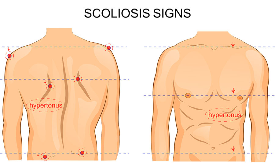 Scoliosis Treatment Chiropractic