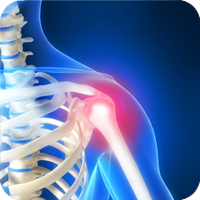 "Chiropractic Treatment for Shoulder Pain Shoulder pain can have a number of different causes, ranging from an injury like a car accident, to a chronic problem like arthritis. Patients who experience shoulder pain may be surprised by the intensity and duration of the pain. The shoulder area is so essential for completing daily activities that it makes sense that the shoulder pain injury should be taken seriously and treated to avoid worsening your condition. Symptoms Some signs that shoulder pain needs immediate attention may include a decreased ability to hold objects, decreased functioning of the arm, shoulder pain that persists even while at rest, shoulder pain that lasts more than a day or two, and unusual twinges or aches in the shoulder area. Diagnosis Chiropractic care can be an extremely effective treatment for shoulder pain regardless of its cause. A chiropractor will often begin with an examination of the patient's neck area since shoulder pain can frequently be the result of ""referred"" pain from the neck. Whether the shoulder pain is connected to the neck or is limited to the lower part of the shoulder, it can generally be treated with non-invasive methods of natural healing such as chiropractic care. Treatment Care for an injured shoulder may include application of heat, application of ice packs, gentle manipulation from the chiropractor to help the shoulder return to its original state of functionality, and gentle stretching and strengthening exercises that the patient can perform at home."