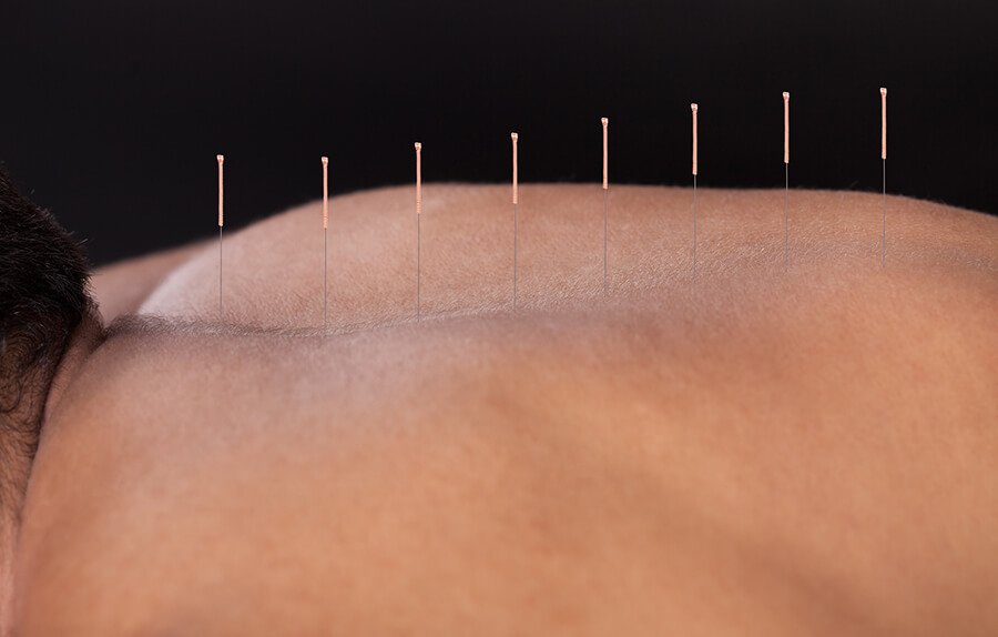 Acupuncture Benefits and Risks